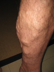 left calf and varicose veins