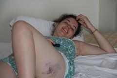 2008-03-23-jamaica-sarah-bruise
