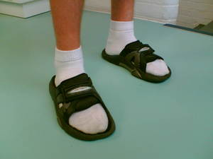 Tube socks and sandals