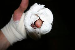 post-op bandage (djfrantic) Tags: surgery arthritis gory nodule
