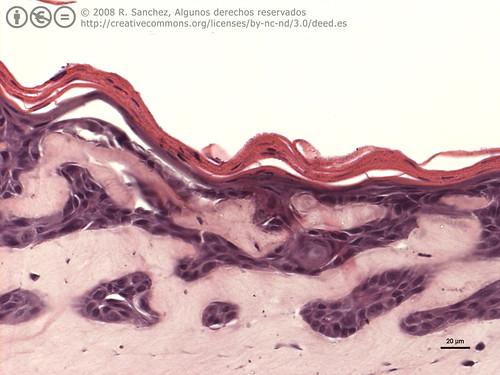 Organotypics HuKs II