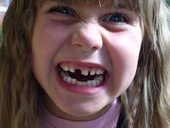 永久歯が生えてこない?!