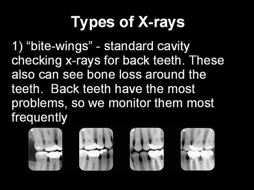 4q x rays 2