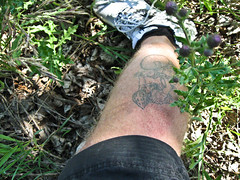 leg rash