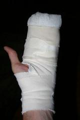 ....like a big club (djfrantic) Tags: surgery arthritis gory nodule