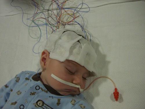 2-17-09-EEG-2