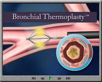 Alair-Bronchial-Thermoplasty-System