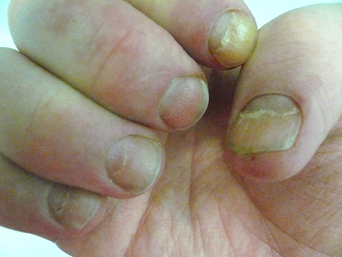 Fingernail symptoms