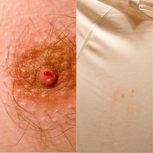 Nipple Bleed