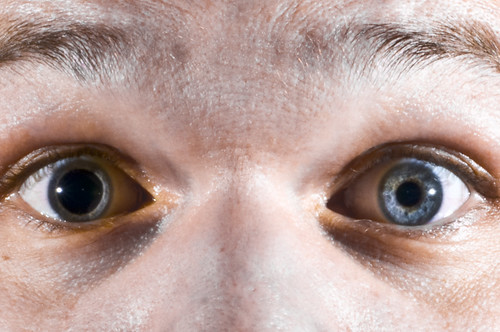 how to tell if your pupils are dilated