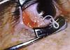 eyeworm2