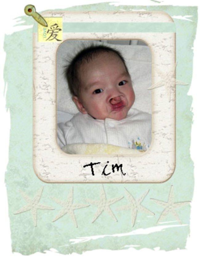 Tim lg
