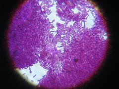 Lactobacillus (x1000)