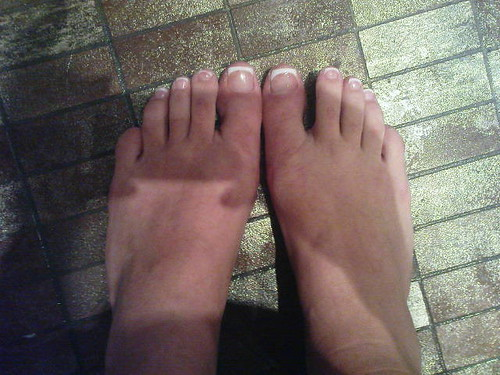 annas underbara fötter