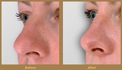 Rhinoplasty (Day Plastic Surgery) Tags: facial botox certified facelift breastaugmentation breastreduction liposuction abdominoplasty rhinoplasty plasticsurgeon tummytuck eyelidsurgery botoxinjections breastlift boardcertified chemicalpeels facialsurgery chinimplants cheekimplants cosmeticsurgeon breastaugmentationsurgery freeconsultation buttockenlargement breastreductionsurgery buttocklift doubleboardcertified
