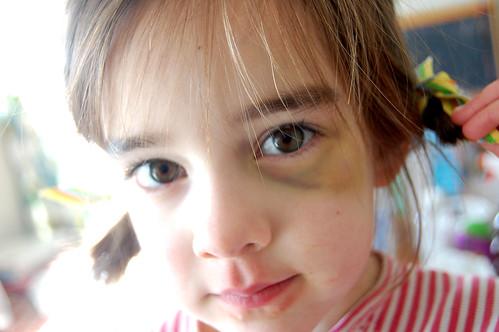 mary's eye