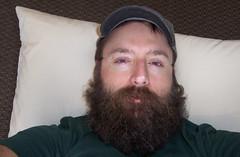 haircut beard sleep acupuncture brokennose wakingup physio groggy