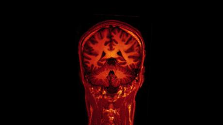 MRI brain scan on Vimeo
