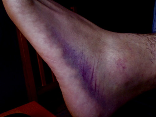 my sprained ankle