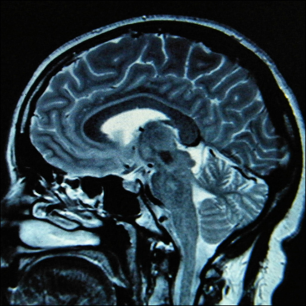 the world\u0027s most recently posted photos of brain and pons flickrpontine lesion (isisbridge) tags mri radiology neuroradiology demyelination demyelinating lesion pons brain brainstem