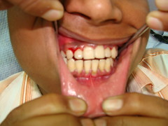Gum disease needs early cure