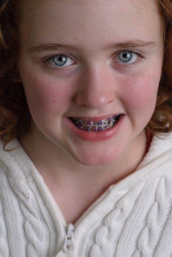 Danielle and the new Braces
