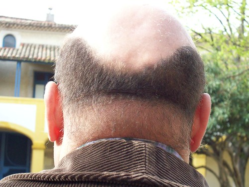 Calvitie. Male pattern baldness. by Only Tradition