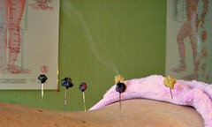 A patient being treated with  acupuncture moxibustion in Nelson, New Zealand by Charlotte Stuart MAc RN