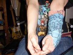 elbow still bruised