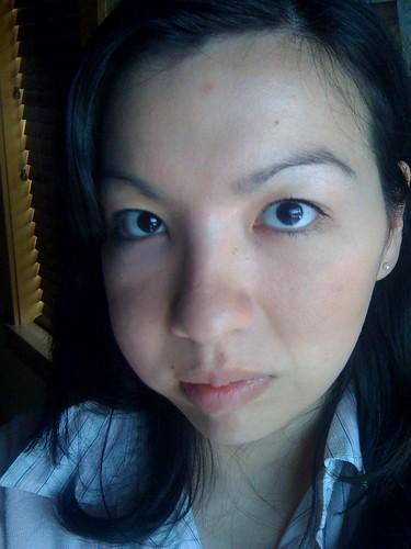 one-sided facial swelling nausea jpg 853x1280