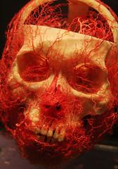 Bodies skull arteries