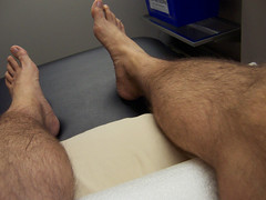 acupuncture session (postbear) Tags: pain knee acupuncture physiotherapy