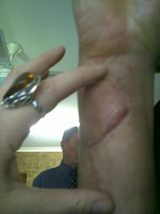 6 weeks post-op - HUGE scar (fishgirl7) Tags: family slash glass june hand cut uncle gash mum funeral wrist wound plasticsurgery scar 2009 rehabilitation june09 flexortendon ulnanerve wineglasstrauma unclefuneral