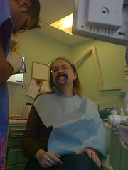 Smile, you're on camera! (elliemcc11) Tags: blue selfportraittuesday dentist cosmetic spt treatment mouthguard veneers 69365 project36612009 march10th2009