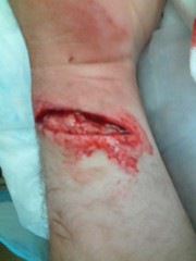 Open Wound (mpoush) Tags: hospital saw blood er open accident cut injury before frankenstein stitches wrist emergency wound