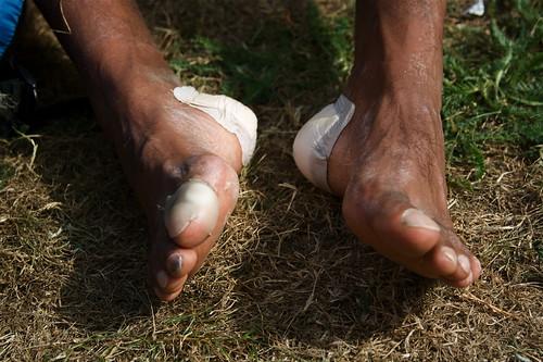 Fixing the feet