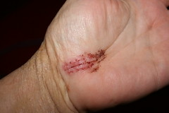 The pain of carpal tunnel + the heartbreak of eczema = ewwwww! (l33twave) Tags: stitches wrist carpaltunnel releasesurgery