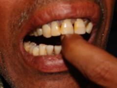 एक अंगुली तक तो मुंह में जा नहीं रही !