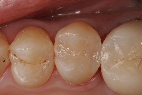 Cavity-filled