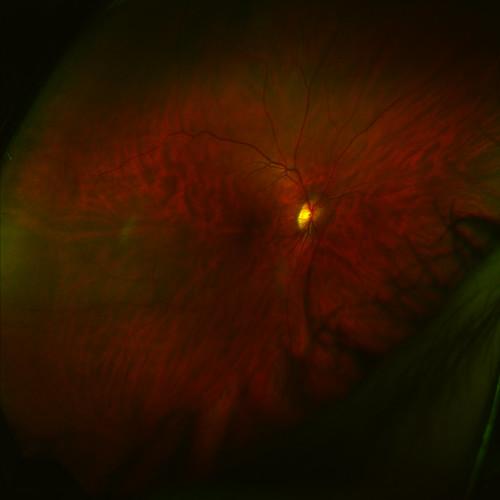 Retina #3
