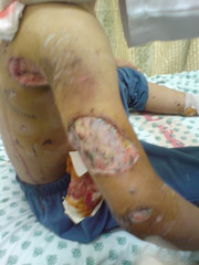 Chemical burns follwong Israeli bombings by ISM Palestine