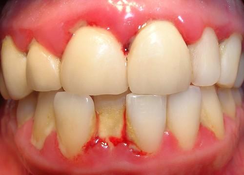 Gingivitis marginal crnica Por qu sangran las encas  Dr