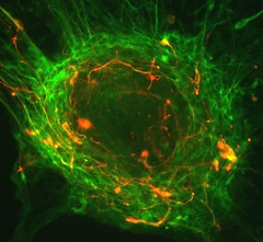 Human embryonic stem cells differentiating into neurons (California Institute for Regenerative Medicine) Tags: california fan los stem university image angeles contest institute human winner medicine cells fluorescence microscopy neurons therapeutic embryonic differentiate regenerative guoping