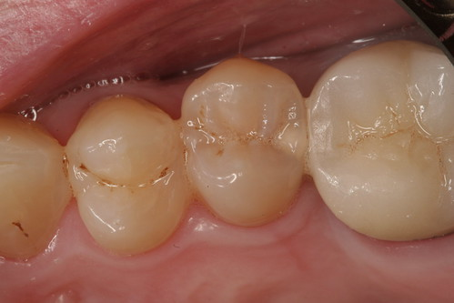 Cavity-before