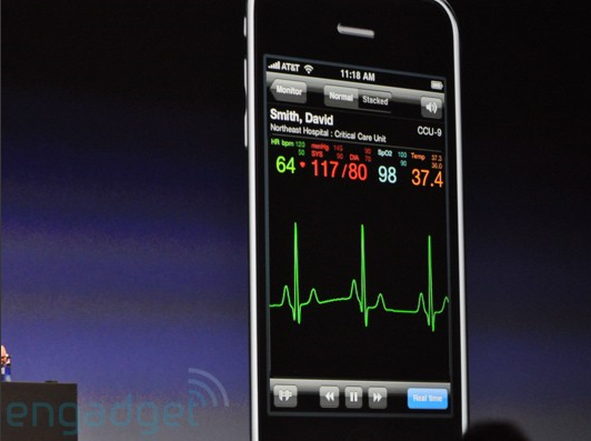 electrocardigramme iphone