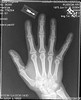 busted finger? (toolatetopaint) Tags: film broken finger xray fracture aric
