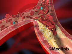 Cholesterol (Medilpix / Medical illustration) Tags: blood science clot artery cholesterol colesterol medicalillustration trigliceridos