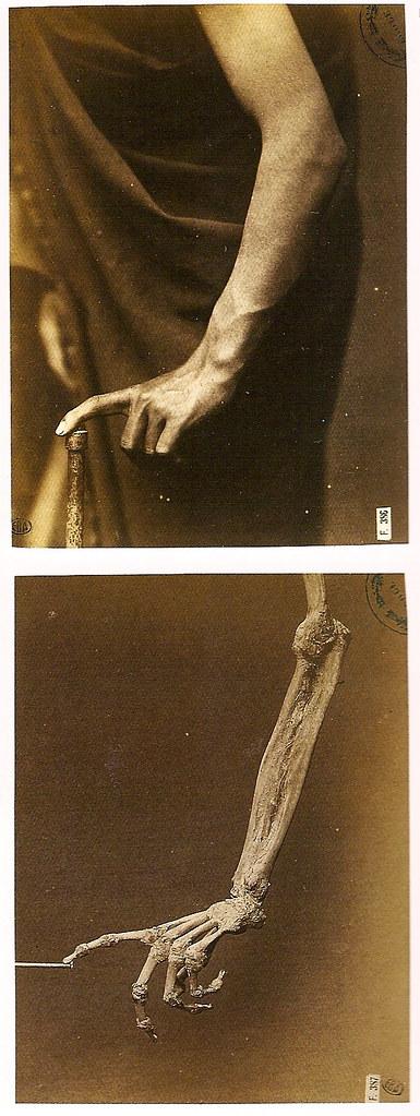 Hermann Heid (Darmstadt, 1834-Vienna, 1891) Étude comparée de la forme dun avant-bras en pronation et de son squelette (1880) 14 by 10.3; 13.8 by 10.3. École des Beaux-Arts, Paris.