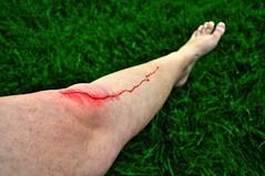 The Big Cut (AnomePhoto) Tags: grass photoshop blood nikon cut carwash blogspot hdr edit d90 photomatrix highdynamicrendering capturenx2 anomephoto summergross nastyblog