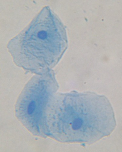 cheek cell